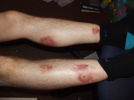 Alaric's legs with infected bites