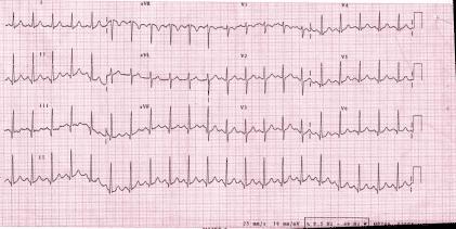 Sarah's ECG